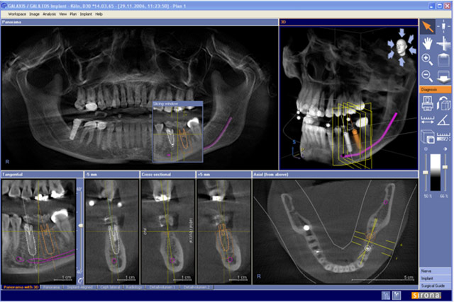 409-892-2600 we offer galileos 3 d imaging cone beam by sirona